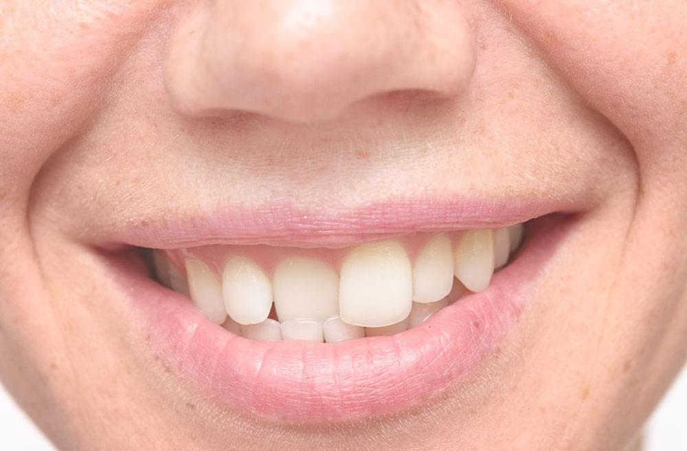 Have misaligned teeth